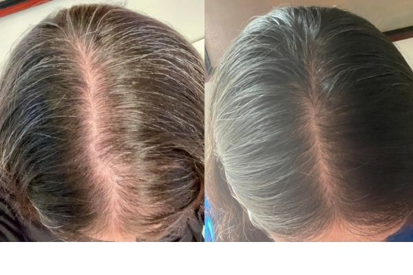 before and after results of folexin