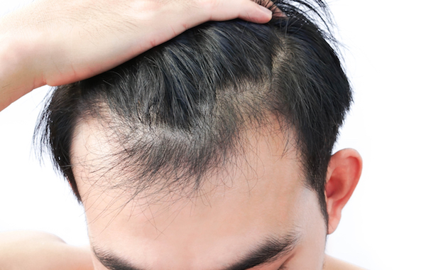 10 Solutions to Stop Your Hair from Thinning and Falling Out